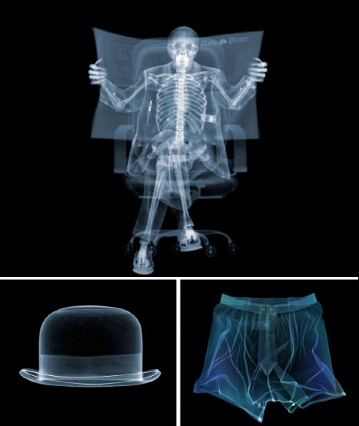 x-ray-photography-1
